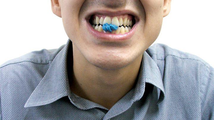Stomatolog powinien wiedzieć o zgrzytaniu zębami